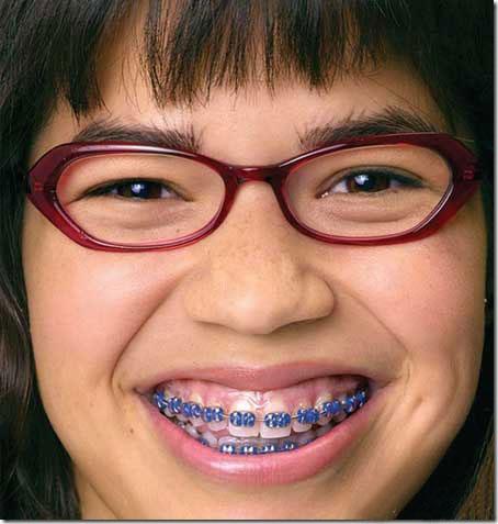 L'apparecchio ai denti per combattere le rughe