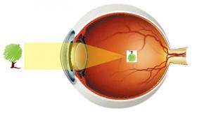 myopia_eye