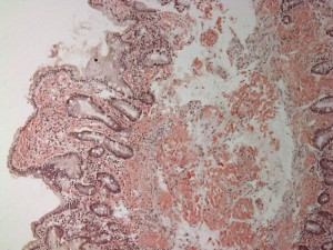 800px-Small_bowel_duodenum_with_amyloid_deposition_congo_red_10X