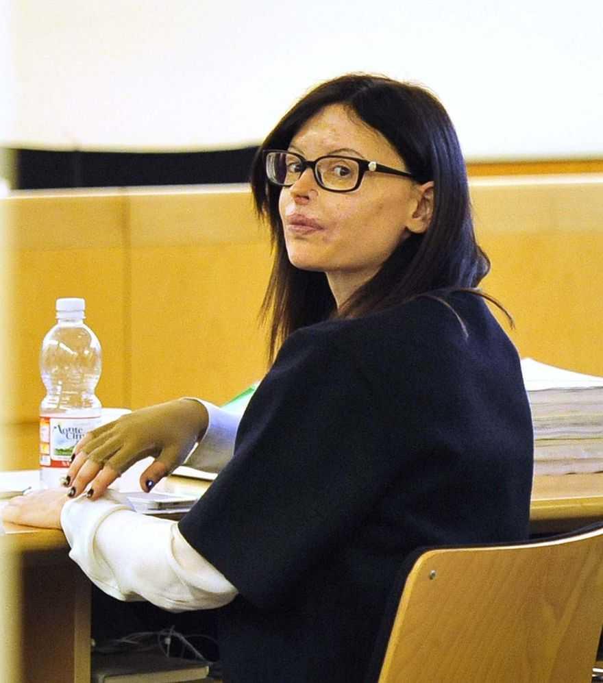 Sfigurata nel 2013, ora Lucia Annibali è soddisfatta per la pena confermata all'ex fidanzato