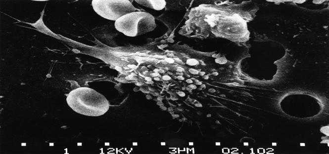 """Sviluppare il cancro potrebbe essere dovuto alla """"sfortuna"""" per mutazioni genetiche casuali del Dna"""