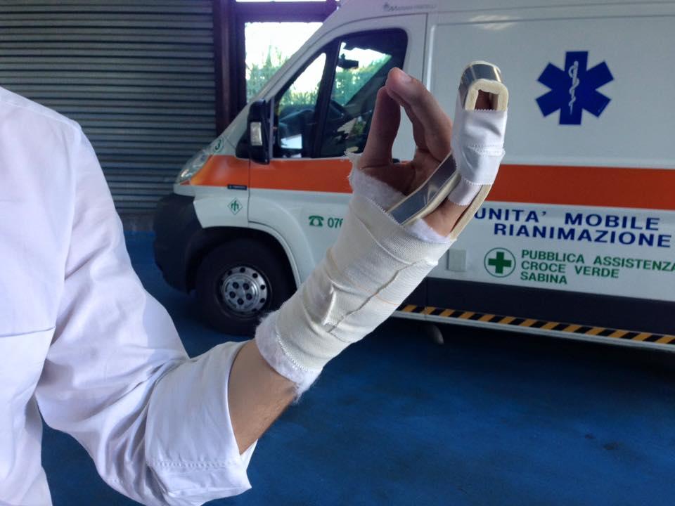 Campidoglio, volano insulti e sedie in assemblea: Onorato (Lista Marchini) finisce in ospedale