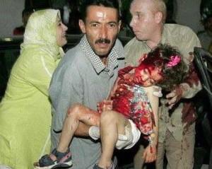 Una bambina innocente vittima della violenza degli scontri Foto: MintPressnews